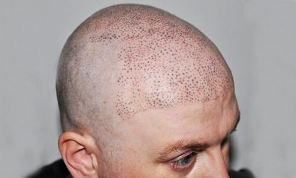 """Come evitare una tricopigmentazione con """"punti allargati"""""""