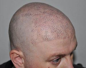 mega-dots-tricopigmentazione