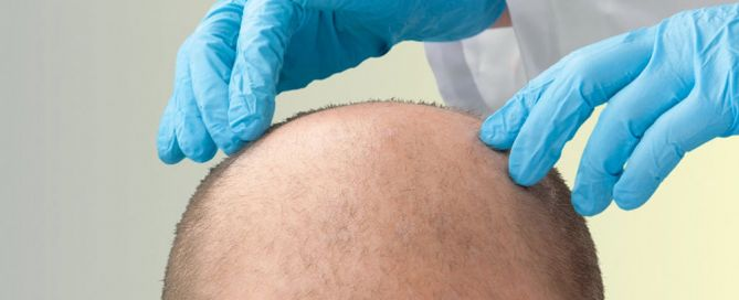 Tricopigmentazione e trapianto di capelli: soluzioni alternative o complementari?