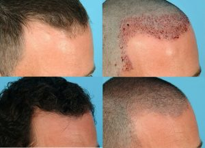 trapianto-frontale-capelli