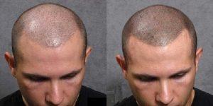 tricpigmentazione-trapianto-capelli