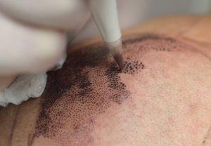 trattamento_tricopigmentazione