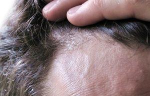 Dermatite seborroica - TricoRepair