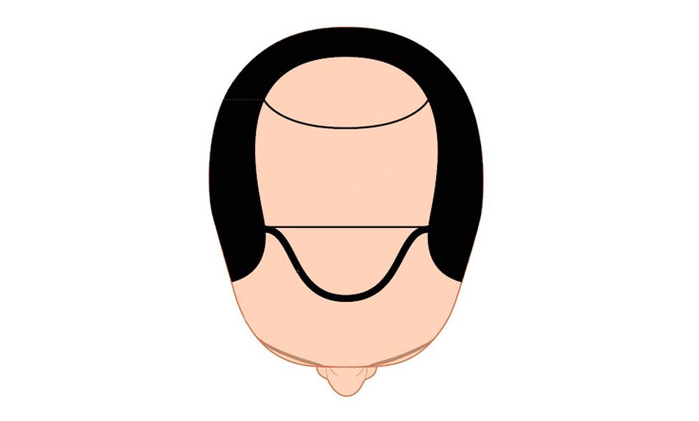Scegliere l'attaccatura frontale dei capelli tricopigmentati