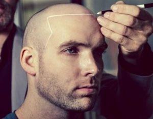 Attaccatura frontale capelli