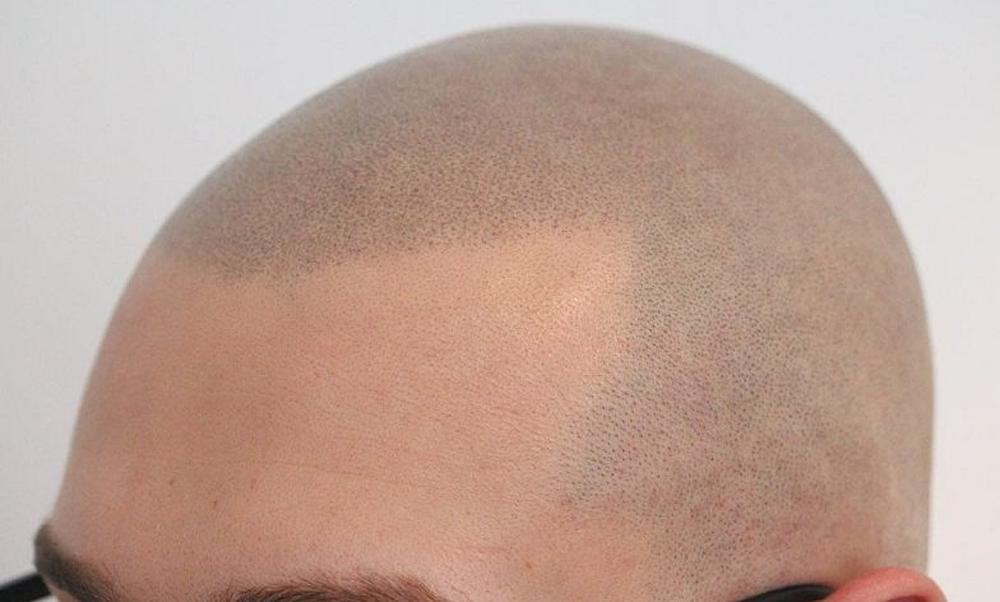 Mantenimento della tricopigmentazione: quanto e quando
