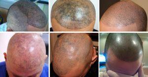 Tricopigmentazione danni - TricoRepair