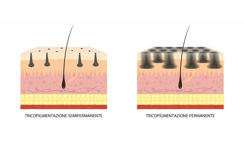 Tricopigmentazione bioreversibile_ tutte le informazioni sulla durata