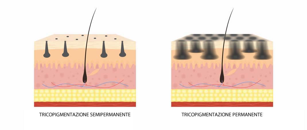 Tricopigmentazione permanente contro semipermanente