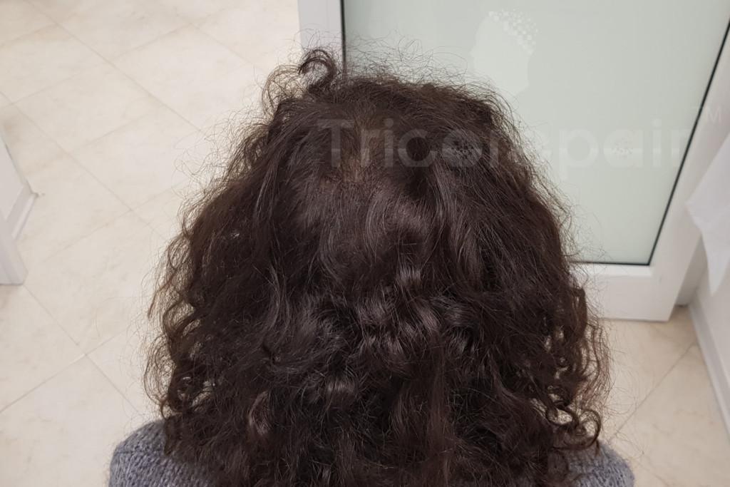 Diradamento su vertex - Dopo il trattamento di tricopigmentazione