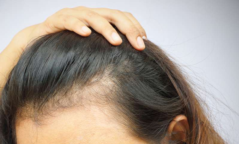 Tricopigmentazione su alopecia femminile: un grande aiuto per combattere l'alopecia nelle donne.